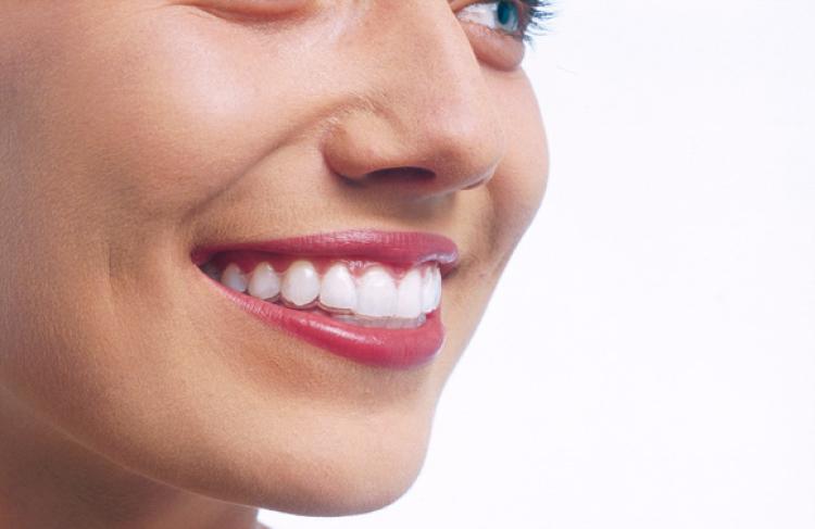Ortodoncia invisible en valencia Invisalign