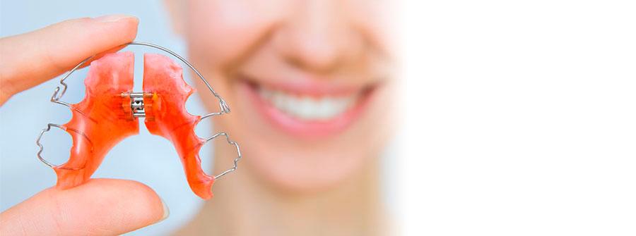 ortodoncia-removible-asensio