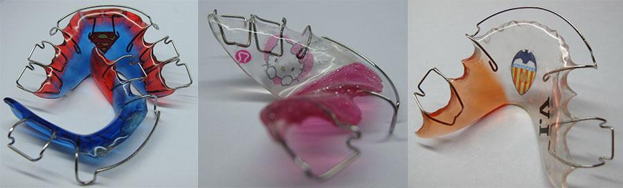 ortodoncia-removible-personalizada