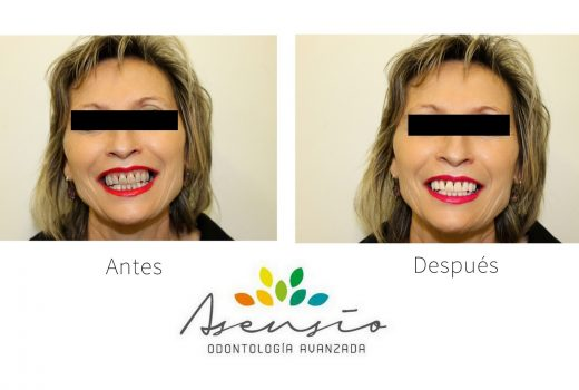 Luce una sonrisa perfecta con nuestro Blanqueamiento Dental
