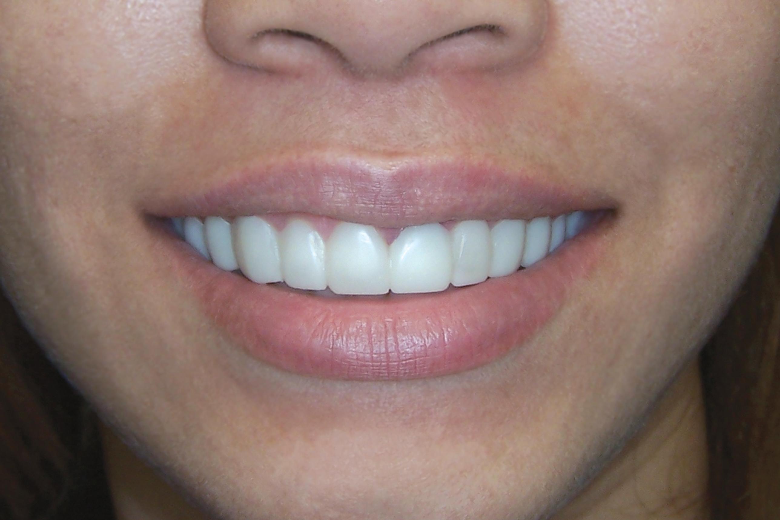100_2948_lips