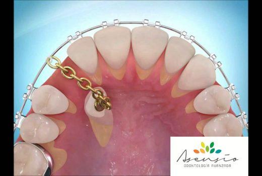 La fenestración dentaria