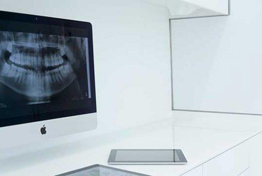 Implantes dentales: Analizamos tu caso para dar con soluciones auténticas.