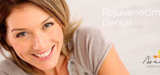 Rejuvenecimiento dental Asensio