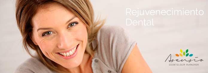 rejuvencimeinto_dental_asensio_valencia