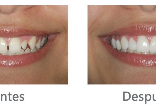 Carillas dentales LUMINEERS,  el último avance en estética dental que cambiará tu vida