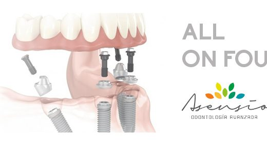 Implantes dentales con All on four: la técnica más actual para recuperar la dentadura.