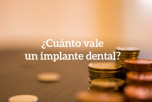 Precio de implantes dentales: La nueva sección web de Asensio