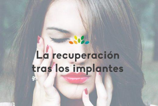 Los implantes dentales y el tiempo de recuperación.