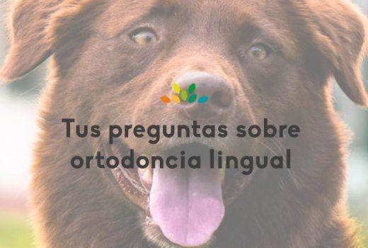 Las ventajas de la ortodoncia lingual