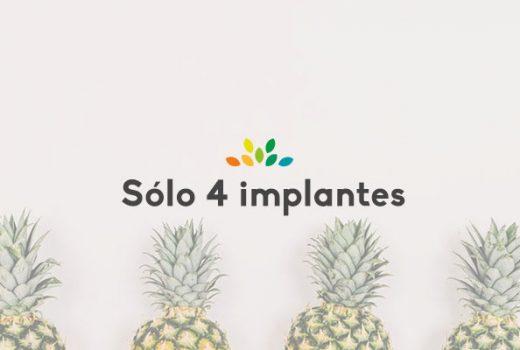 4 implantes que son para siempre