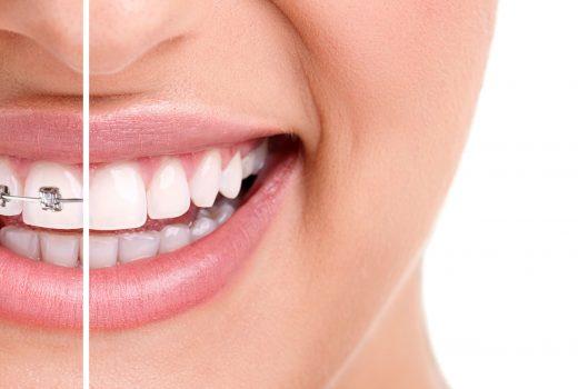 Cuidados en la ortodoncia
