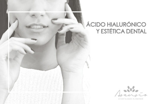 El ácido hialurónico en la estética dental