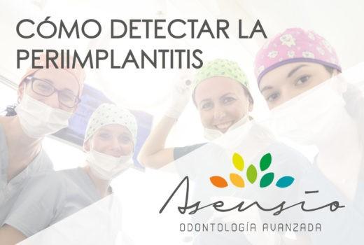 Cómo detectar la periimplantitis