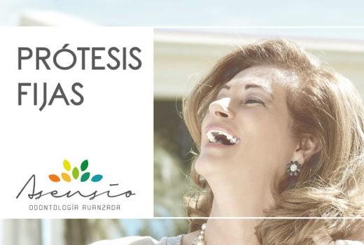 Prótesis Fijas, ¿qué es y en que consiste?