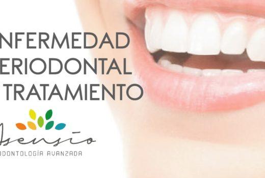 ¿Qué es la periodoncia, enfermedad periodontal y su tratamiento?