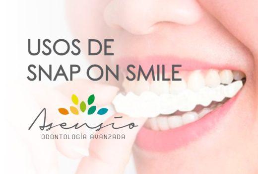 ¿En qué consiste Snap on Smile?