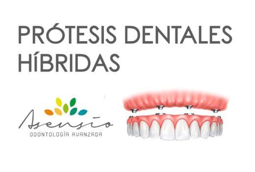 PROTESIS HIBRIDA DENTAL