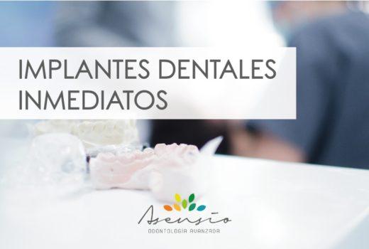 IMPLANTES DENTALES INMEDIATOS. LA MEJOR SOLUCION EN ASENSIO ODONTOLOGIA AVANZADA
