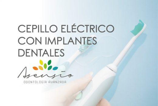 Si tengo implantes dentales… ¿Qué cepillo de dientes debería utilizar?