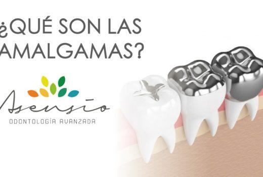 ¿Qué son las amalgamas dentales?