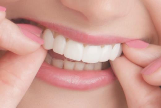 ¿Qué es Snap on Smile?